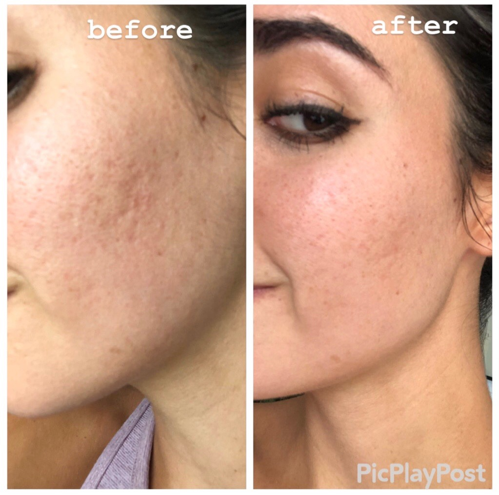 How I'm Healing My Skin & Acne Scars | with Viva Day Spa